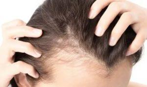 Запоры, выпадение волос