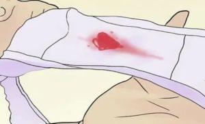 После ПА пошла кровь