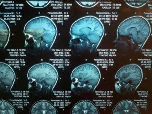 Помогите расшифровать МРТ головного мозга