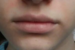 Кожа над верхней губой всегда белая, не краснеет