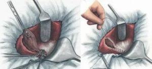 Воспаление желчного пузыря, ком в горле