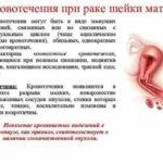 Подскажите по УЗИ лимфоузлов на шее