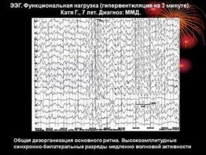 Нужно ли делать суточный видеомониторинг ЭЭГ при ВСД?