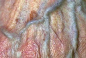 Трещина между половыми губами