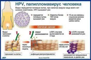 Донорство при вирусе папилломы человека