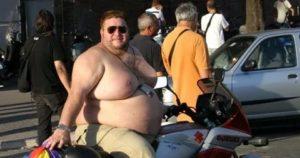 Инвалидность при сильном ожирении