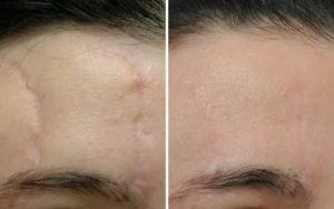 Можно ли избавиться от шрама?