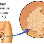 С чем связано появление атипичных мононуклеаров в крови при пневмонии?