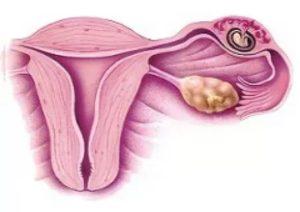 Скудная менструация при кисте желтого тела