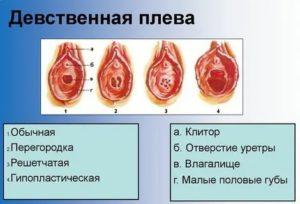 Повреждение девственной плевы