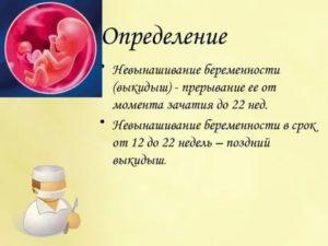 Хочу прервать беременность на 22 неделе.