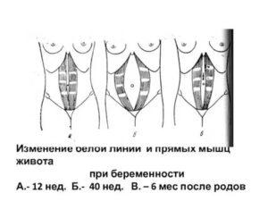 Напряжение мышц живота при беременности
