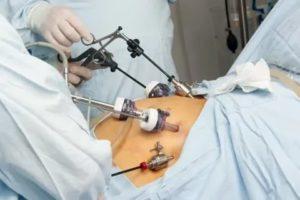 Поможет ли лапароскопия забеременеть?