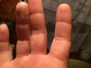 Постоянно трескается кожа на пальцах рук