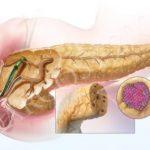 Насколько страшны результаты биопсии?