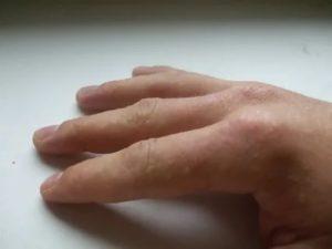 Сыпь на костяшках пальцев, зудит