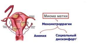 Миома матки и низкий гемоглобин