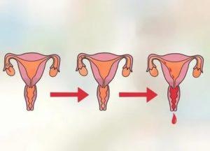 Как вернуть вес и менструацию в нормальное состояние?