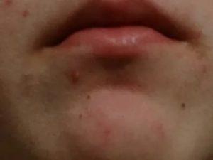 Красное пятно под губой