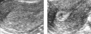 Эндометрий умеренно гиперэхогенный, что это такое?