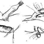 Во время месячных на голове появляются красные шишки